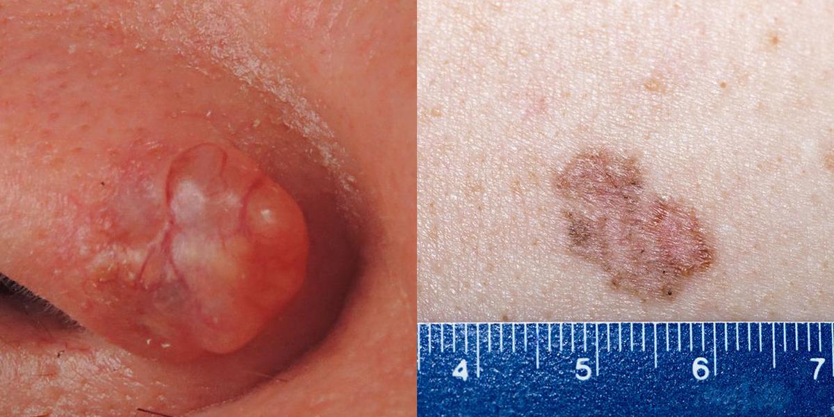 Wart on skin cancer Pin on articole pentru ea