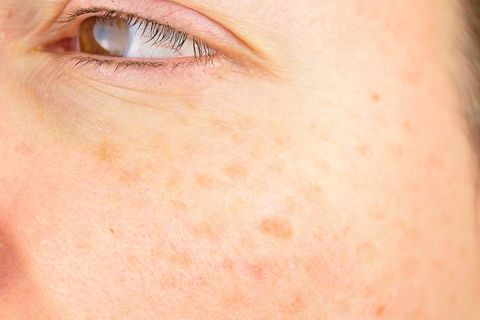 7 Effective Ways to Get Rid of Age Spots, According to Dermatologists
