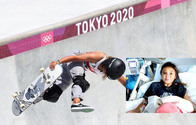 sky brown compite en tokio 2020 y consigue una medalla olímpica y una imagen de su estado tras un terrible accidente dos años antes