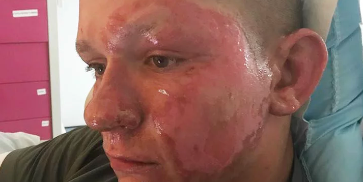 Virginia Teen Suffers Third-Degree Burns After Cutting Down a Giant Hogweed Plant