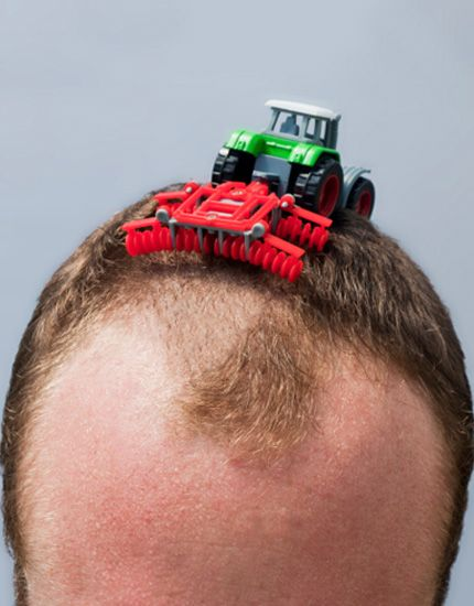 balding small.jpg