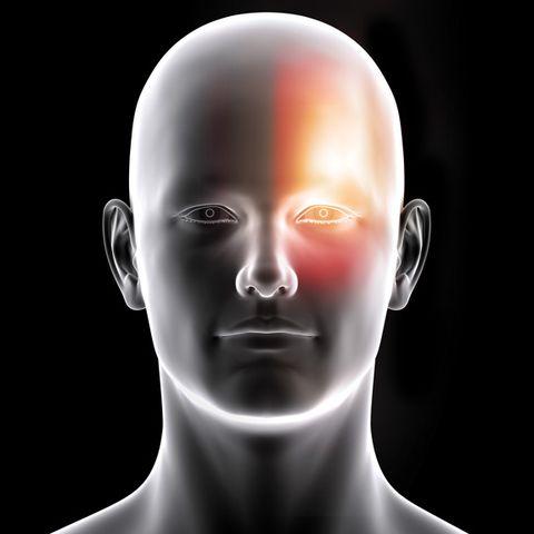 MH-headache-slideshow-2.jpg
