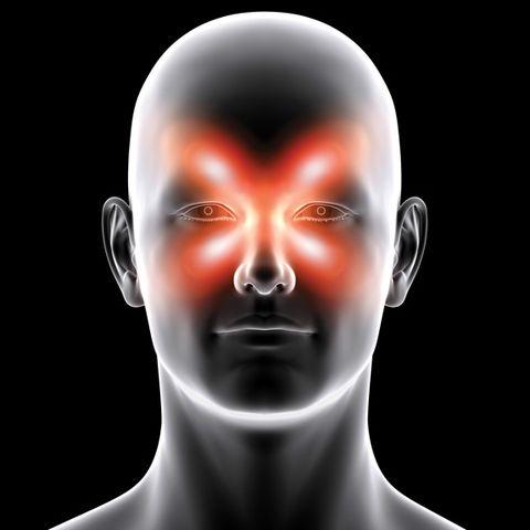 MH-headache-slideshow-3.jpg