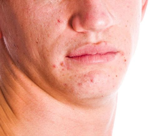 12 Common Skin Problems and Solutions | Men's Health