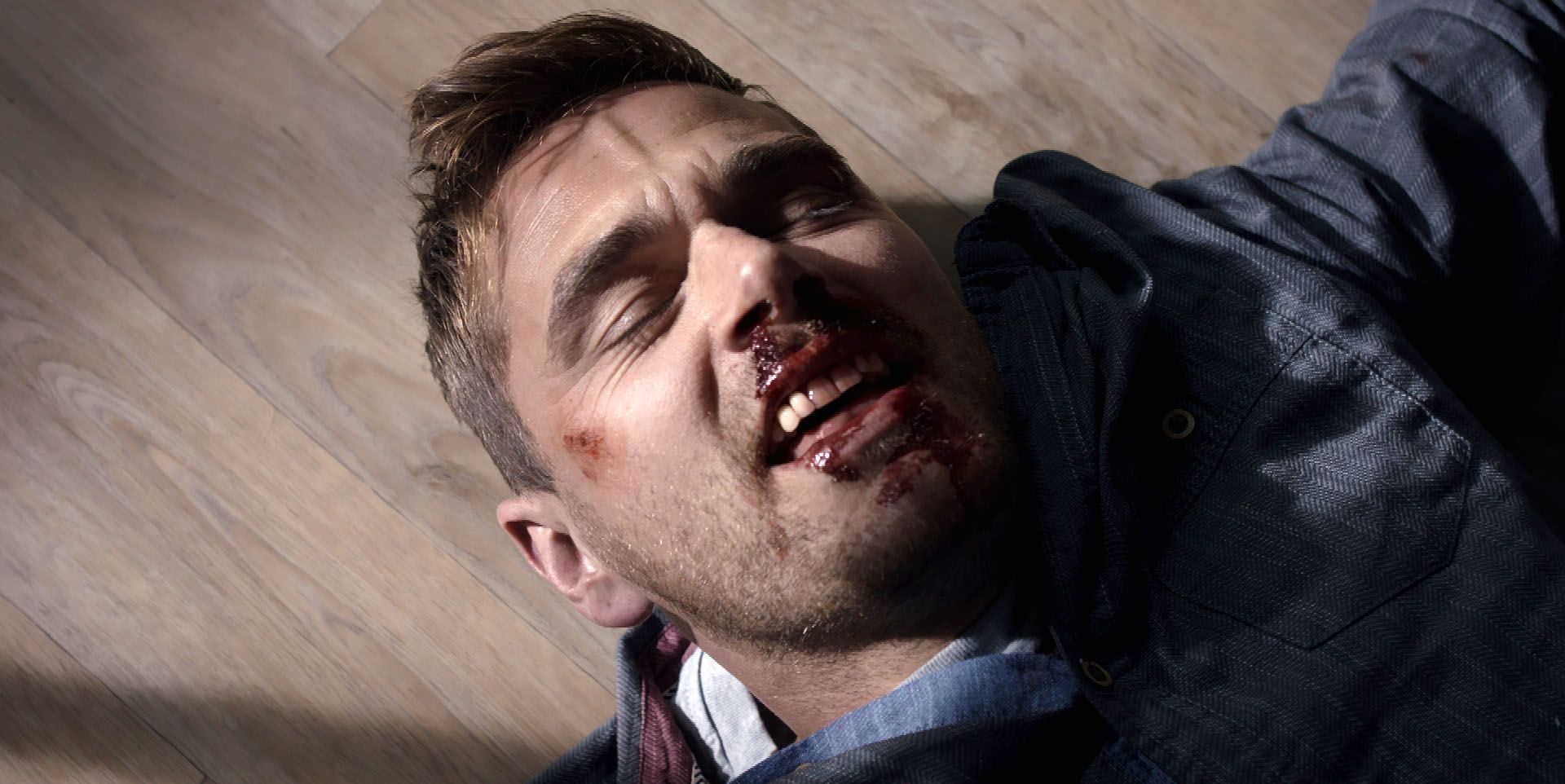 Iain Dean gets beaten up in Casualty