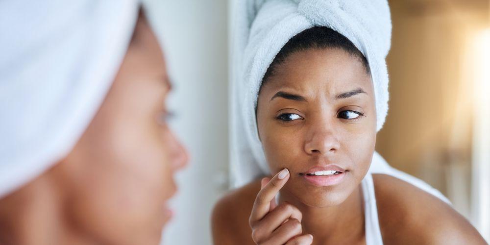 Spironolactone acne