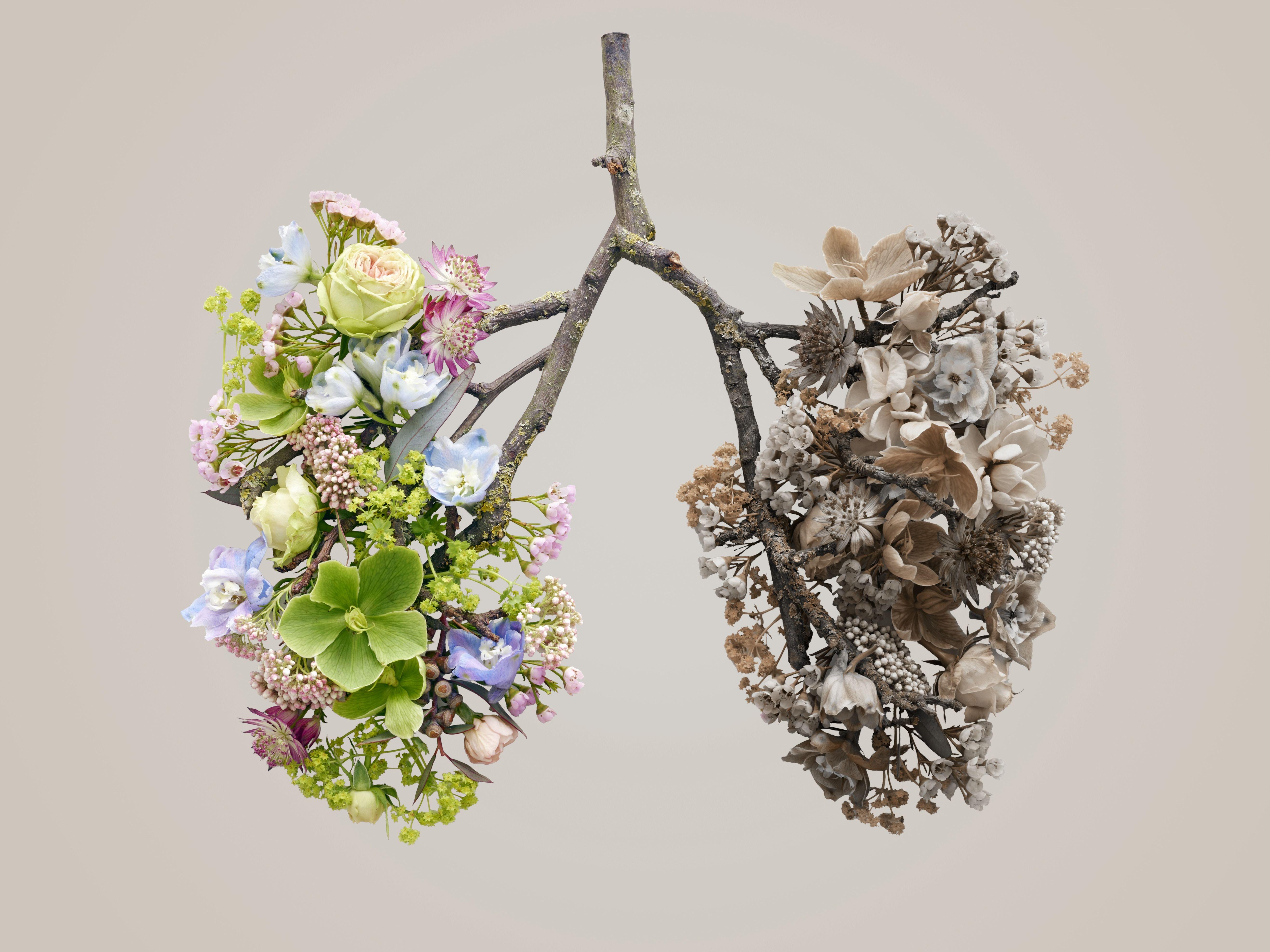 9 Lung Cancer Symptoms All Women Should Keep On Their Radar