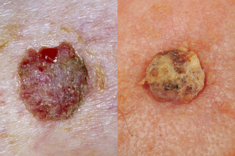 squamous cell carcinoma skin cancer pictures