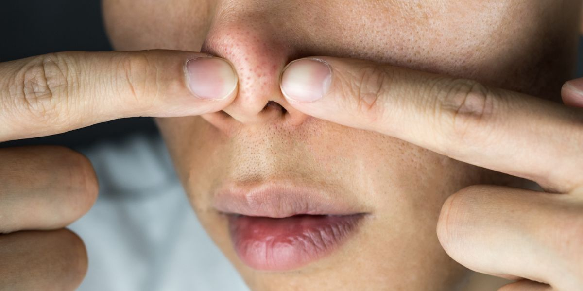 8 Best Blackhead Masks Of 2019 According To Dermatologists