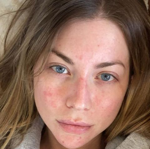 psoriasis flare up on face)