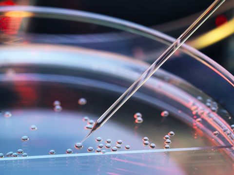 Stem cell research, nuclear transfer being carried out on several embryonic stem cells for cloning