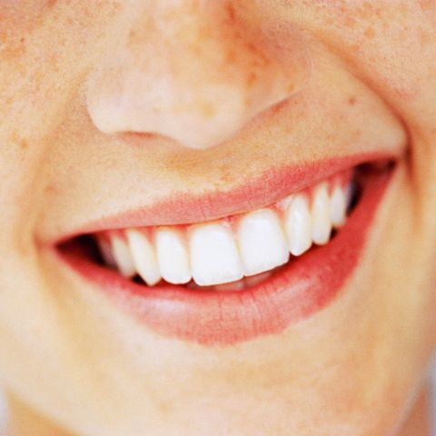 Is stress sabotaging your teeth?
