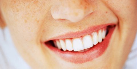 Teeth Whitening Benefits Risks And Best Treatments