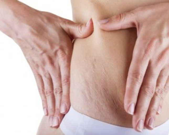 What REALLY Causes Stretch Marks