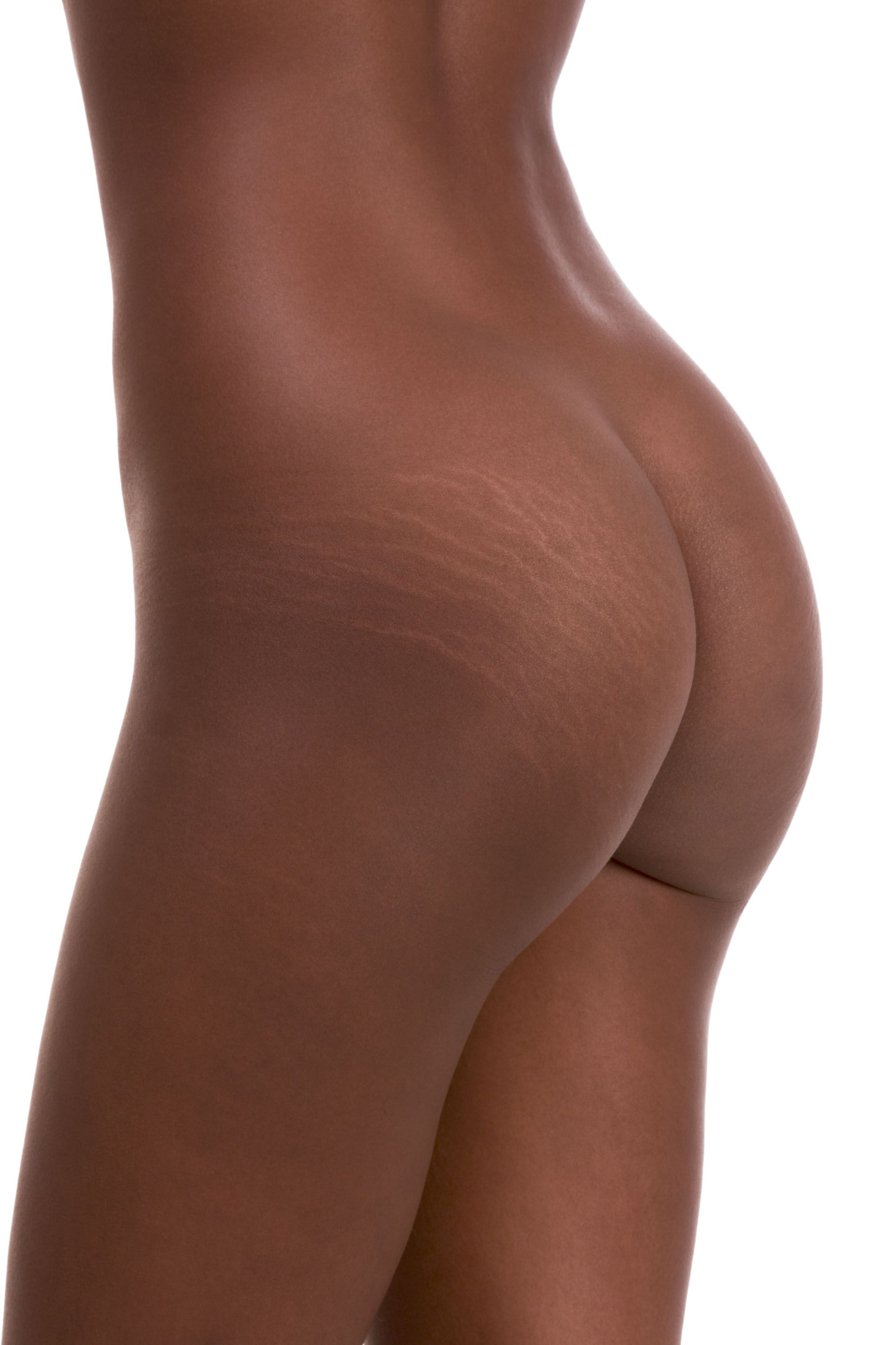 how to get rid of dark stretch marks on arms