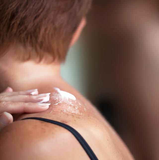 sunburned skin healing after blister