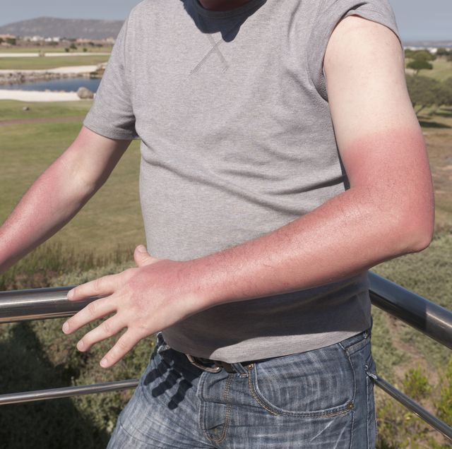 stages of a sunburn