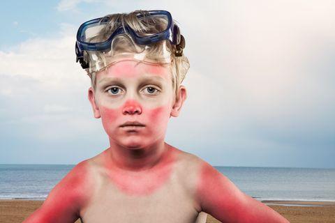 verbrande jongen