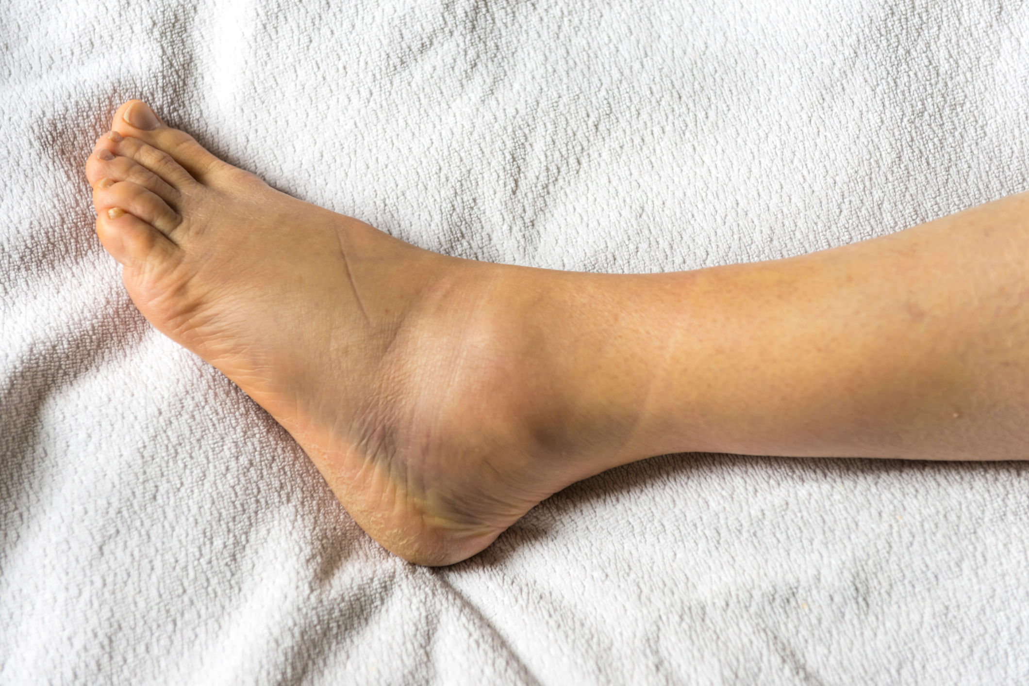 12 Reasons You Have Swollen Ankles, According to Doctors
