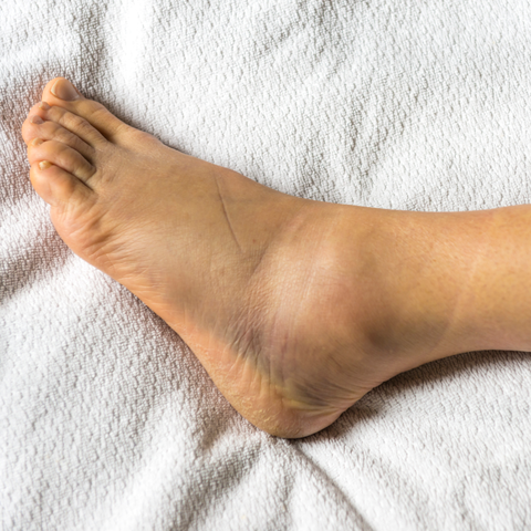 12 Causes Of Swollen Ankles Feet Why Are My Ankles Swollen