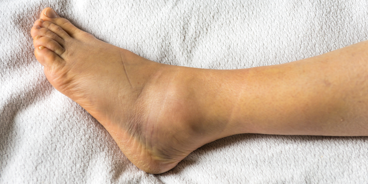 All the Reasons That May Explain Your Annoyingly Swollen Ankles