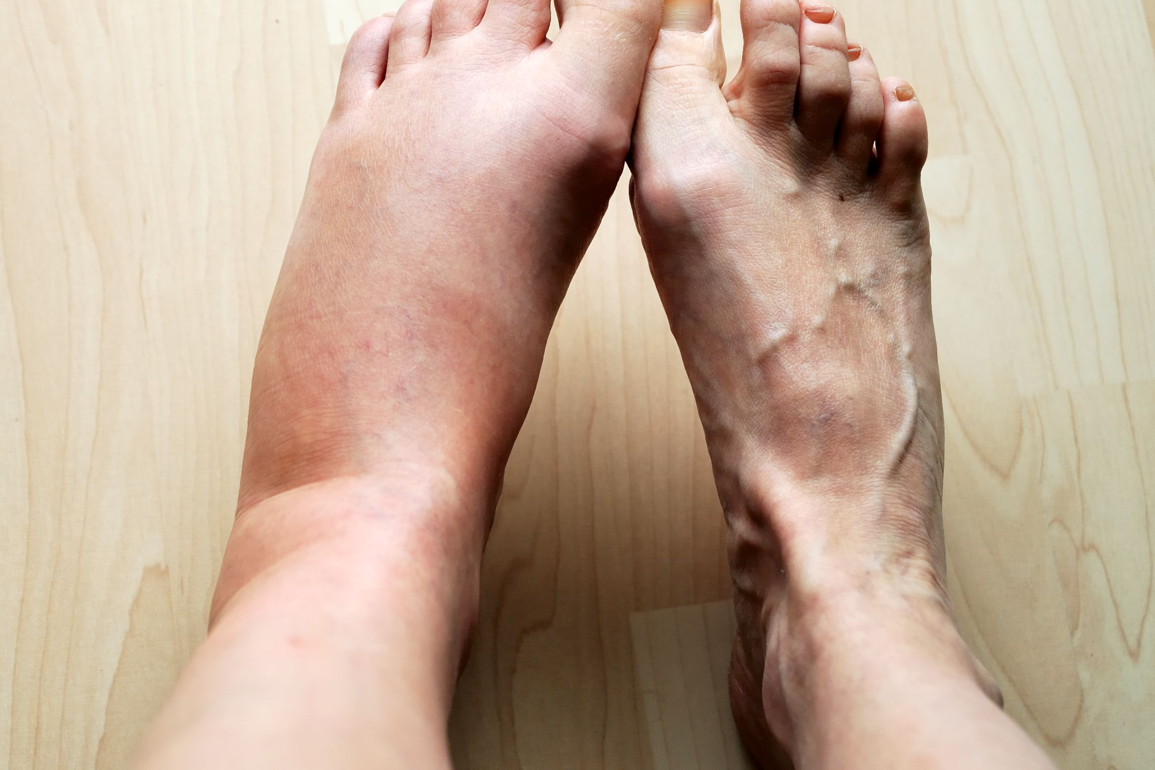 10 Causes For Swollen Feet Why Your Feet Ankles Legs Swell