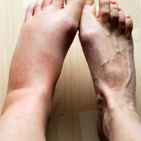 10 Reasons You Have Swollen Feet, Ankles, and Legs, According to a Doctor