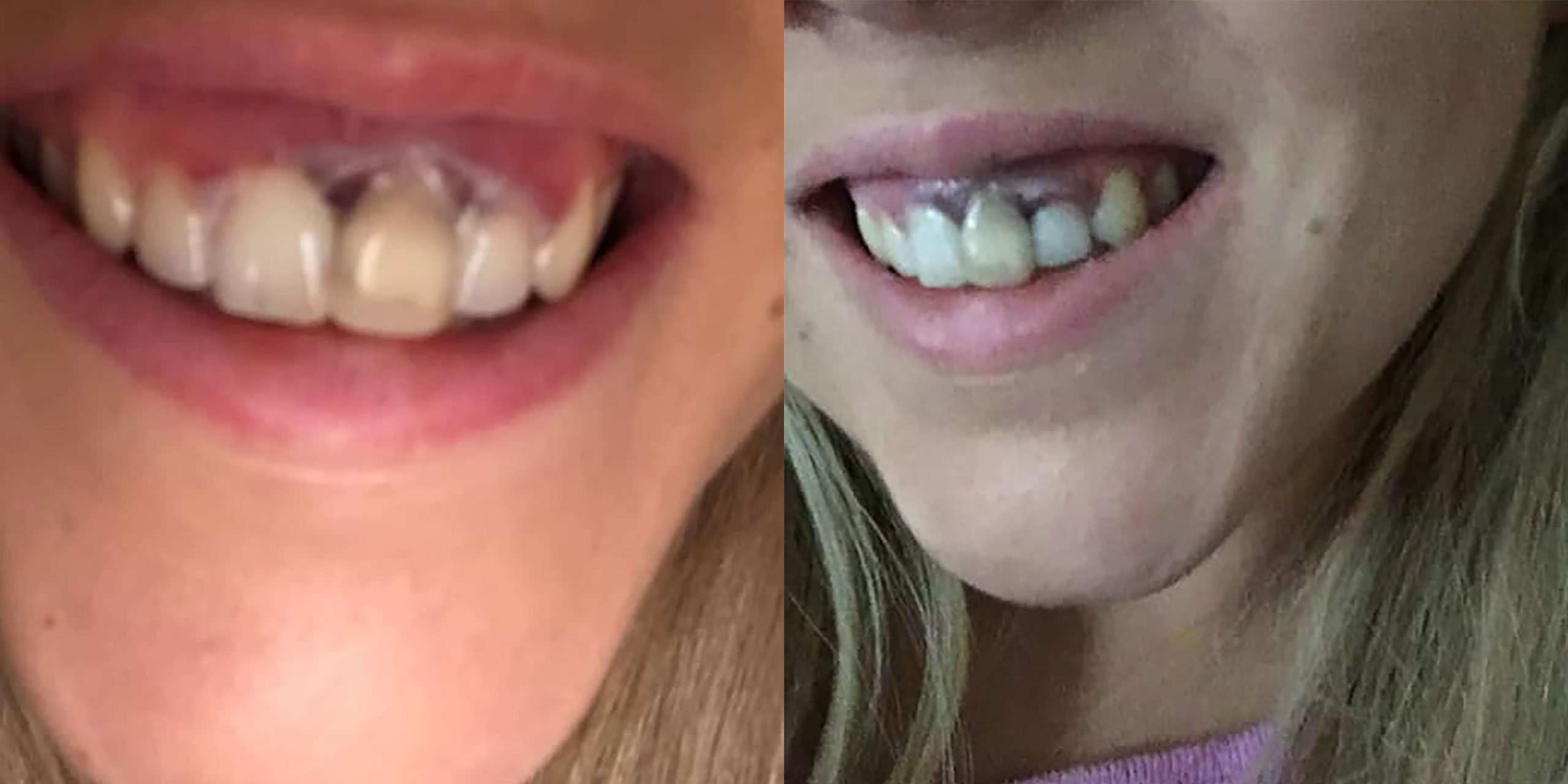 Woman Shares Photos Of Bad Teeth Whitening Job That Burned Her Gums