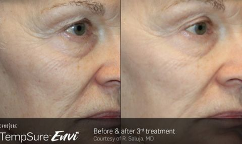 TempSure Is a Non-Surgical, Painless Face Lift - TempSure Before and