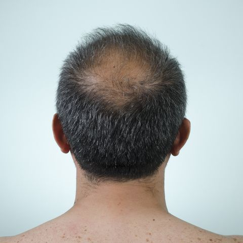 How to fight Male Pattern Baldness