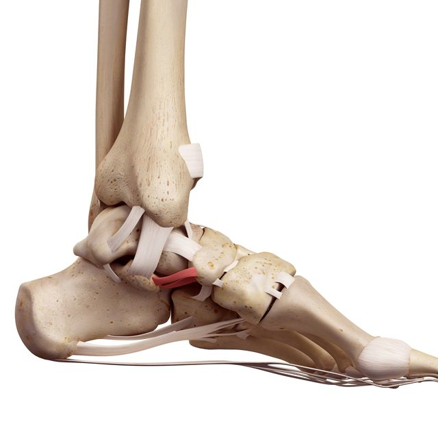 how to deal with plantar pain from running