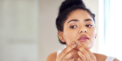 How to Quickly Get Rid of Pimples