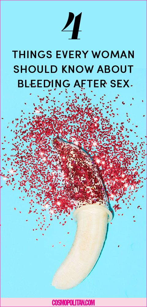 Bleeding after period after sex