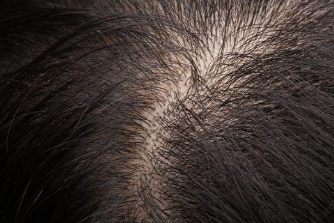 thinning hair and scalp 髪 抜け毛 ヘアロス