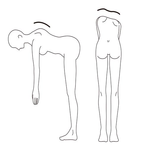this is an illustration of checking if you have scoliosis