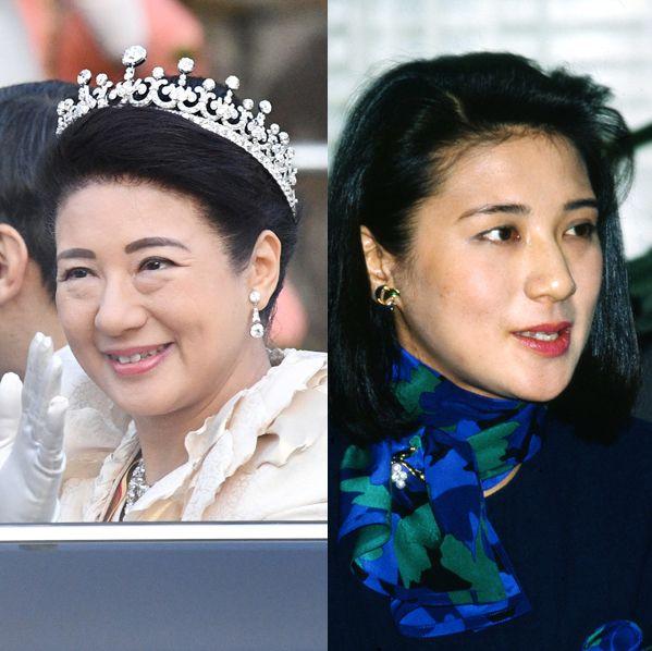 皇后雅子さまの美貌遍歴