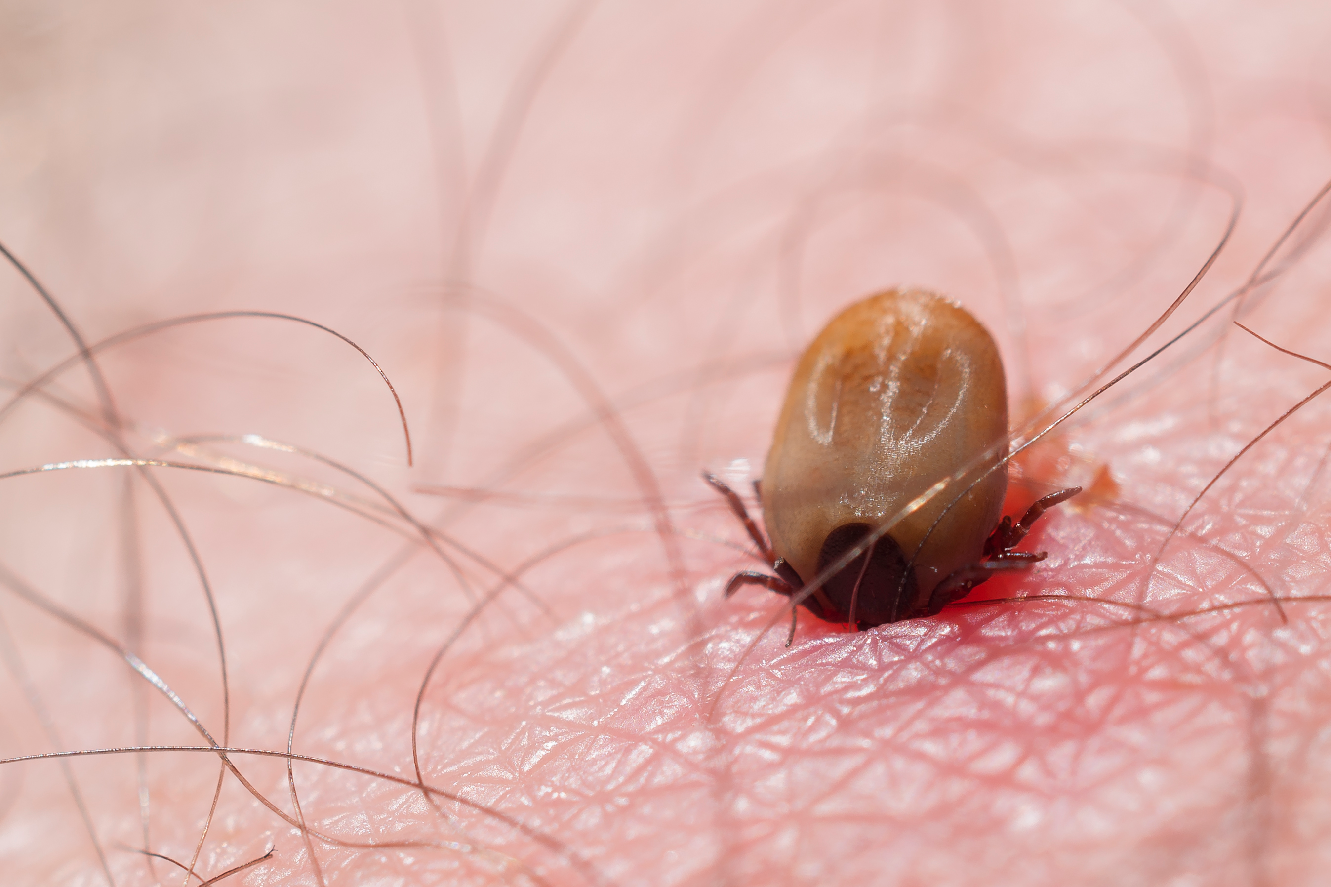 Tick Bite Pictures & Symptoms - What Does a Tick Bite Look Like?