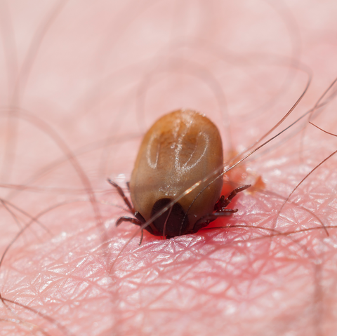 What Does a Tick Bite Look Like? Here's Exactly How to Identify One