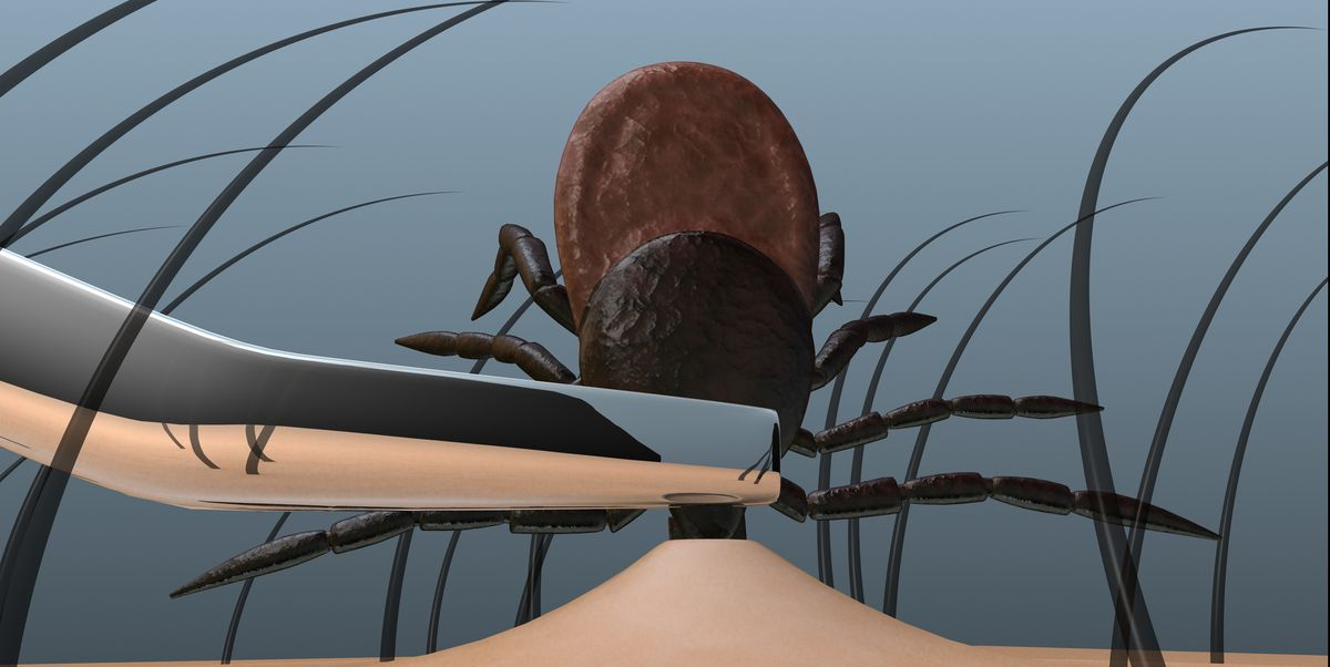 How to remove a tick bite the right way