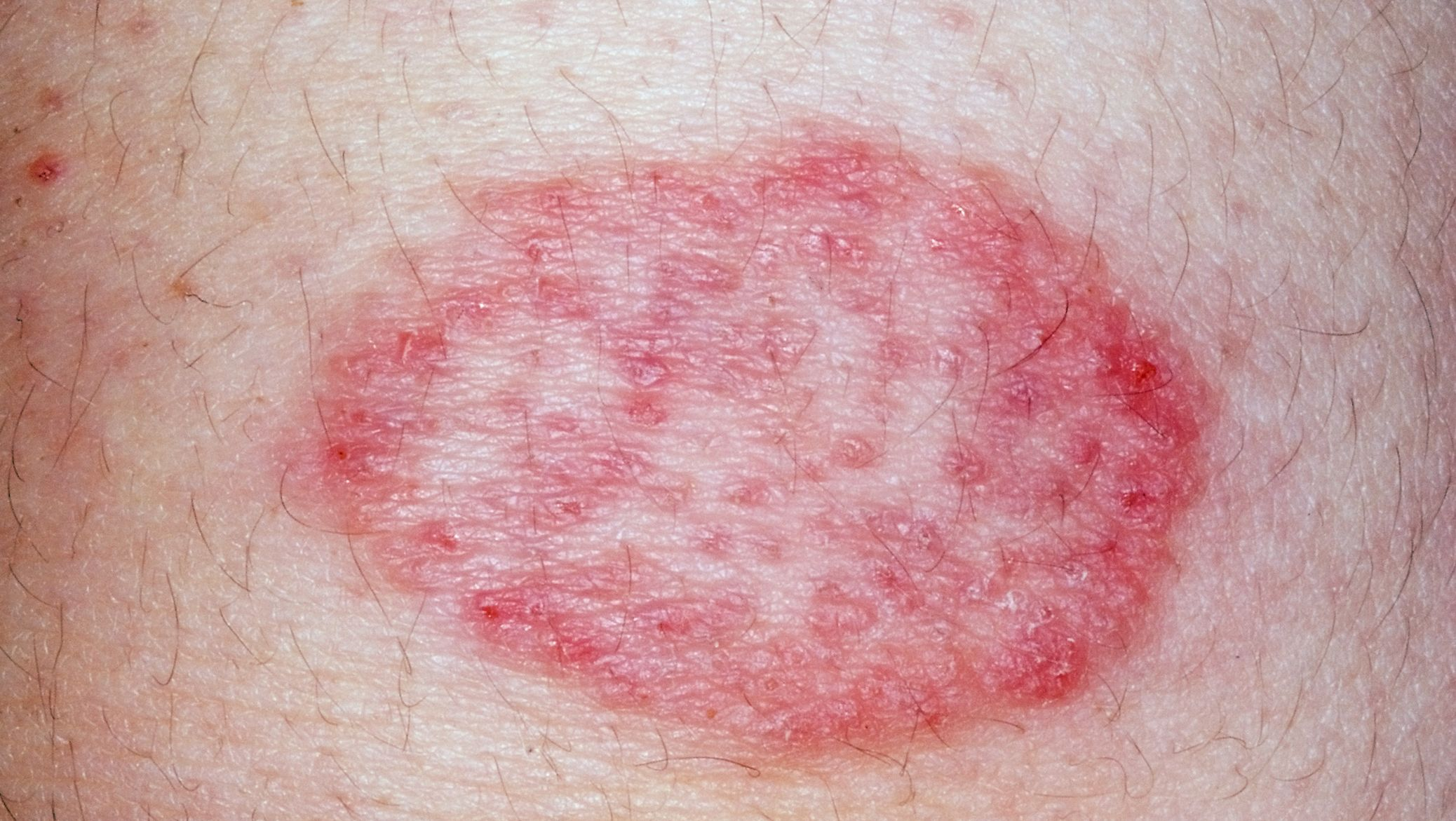 tinea infection