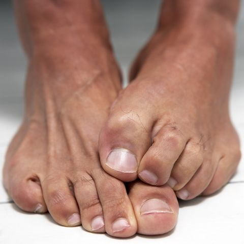 Toe amputation: causes, surgery and recovery
