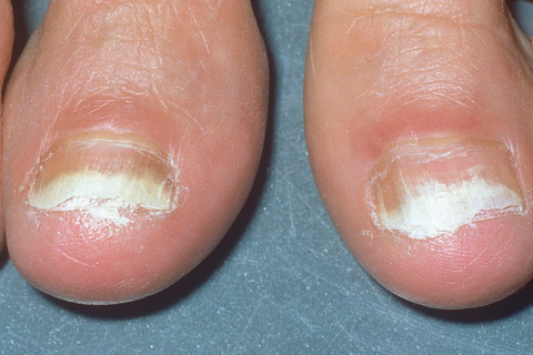 7 Effective Toenail Fungus Treatments - Best Natural Home Remedies