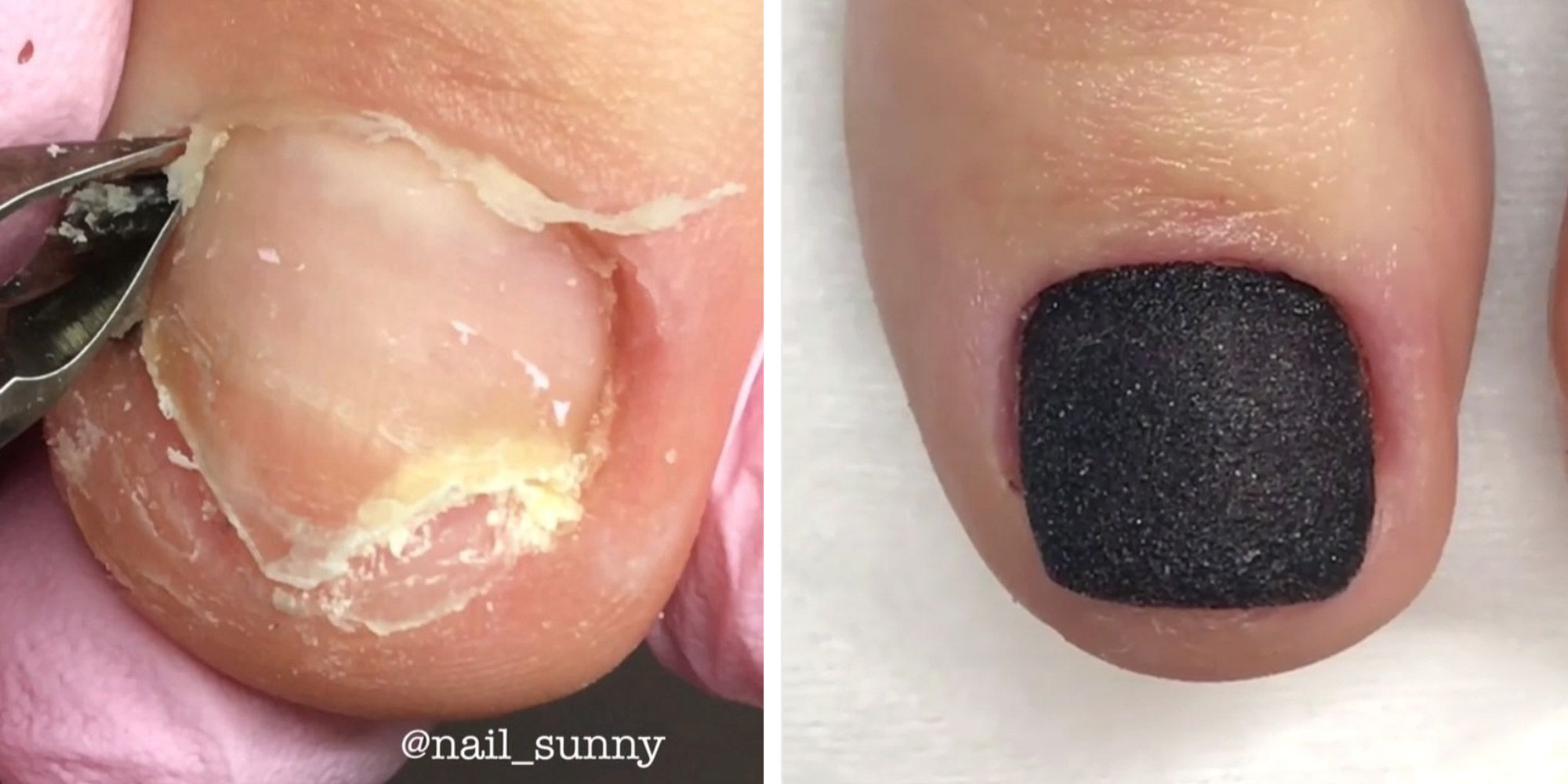 We Can T Stop Watching This Toenail Reconstruction How To Fix Broken Tonenail