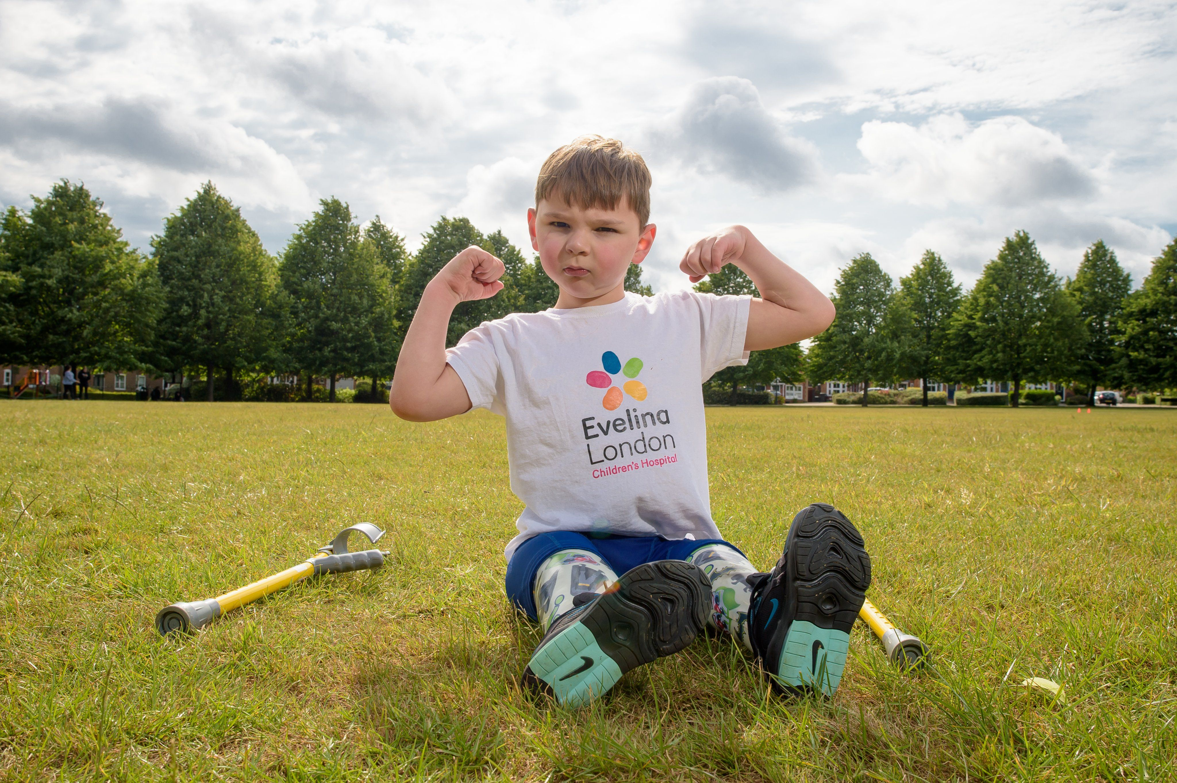 A 5-year-old boy who had both legs amputated has raised £1 million ...