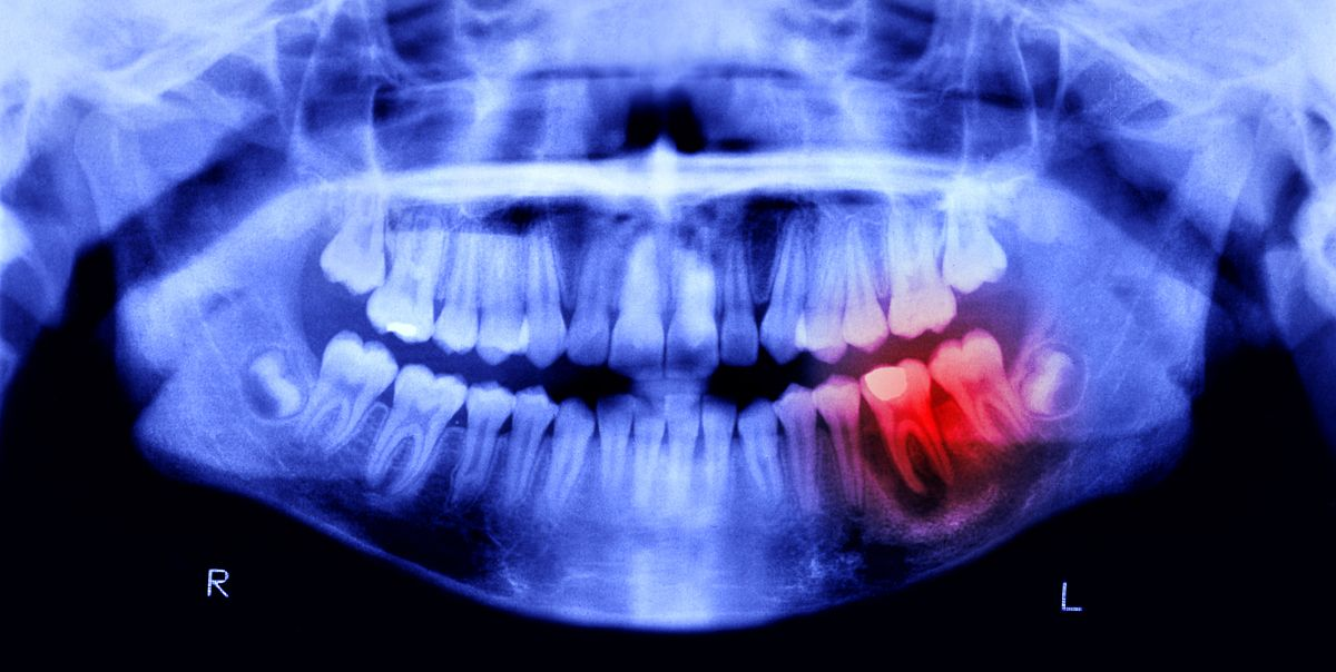9 Reasons Your Teeth Hurt and How to Stop the Ache, According to Dentists