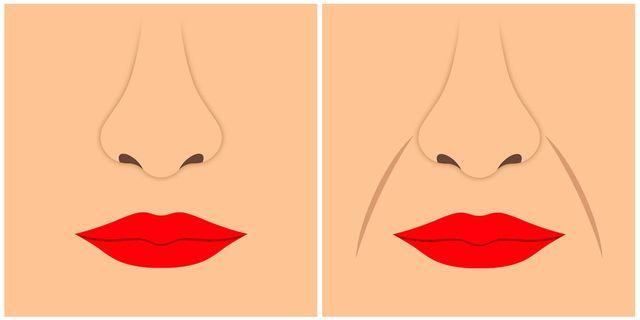 美容皮膚科医が解説!20代から始める「ほうれい線対策」