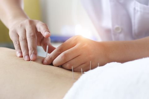 traditional chinese medicine treatment   acupuncture,acupuncture