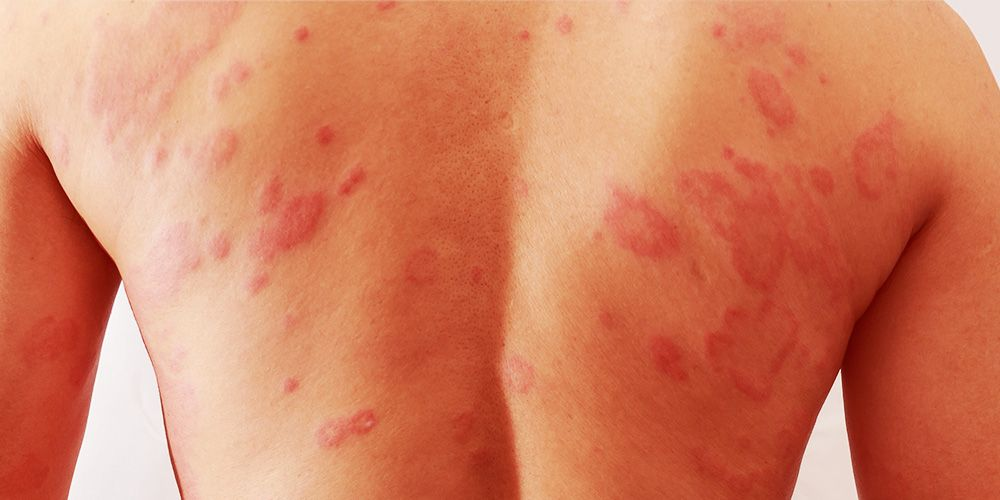 How to Treat 4 Common Rashes | Men's Health