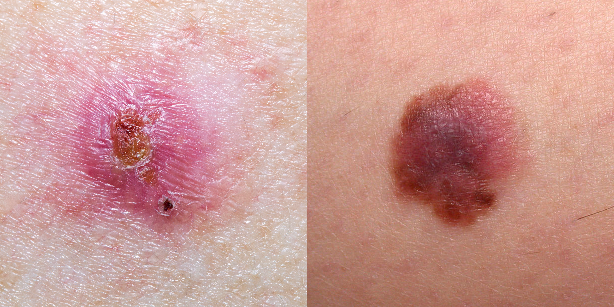 Skin Cancer Pictures 5 Different Types Of Skin Cancer To Know