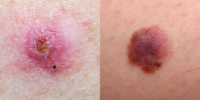 wart remover on skin cancer)